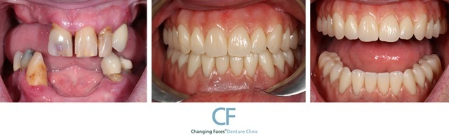 Changing faces dentures click here to zoom solutioingenieria Choice Image