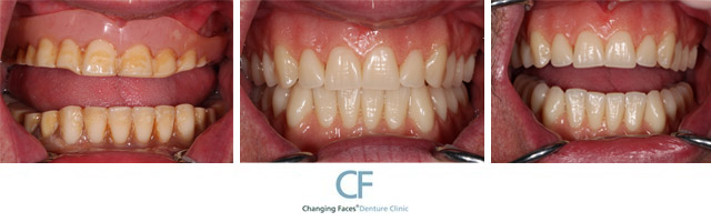 Changing faces dentures click here to zoom solutioingenieria Image collections