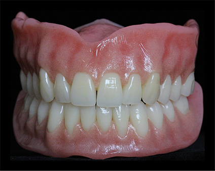 Natural looking dentures