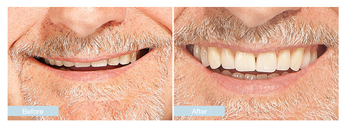 Dentures new dentures changing faces denture clinics show your smile not your dentures solutioingenieria Image collections